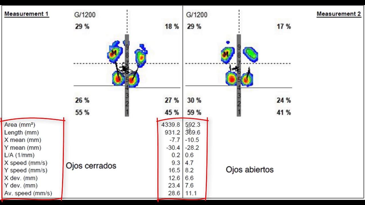 romberg balance test pdf